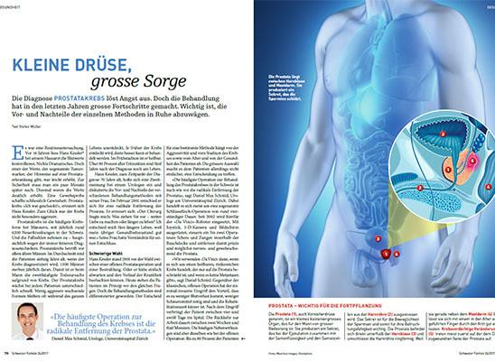 próstata abtasten urologetica